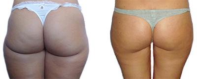 Resultaten-Cryo21-vetverbranding-benen-en-billen-Salon-Heike-Hoorn