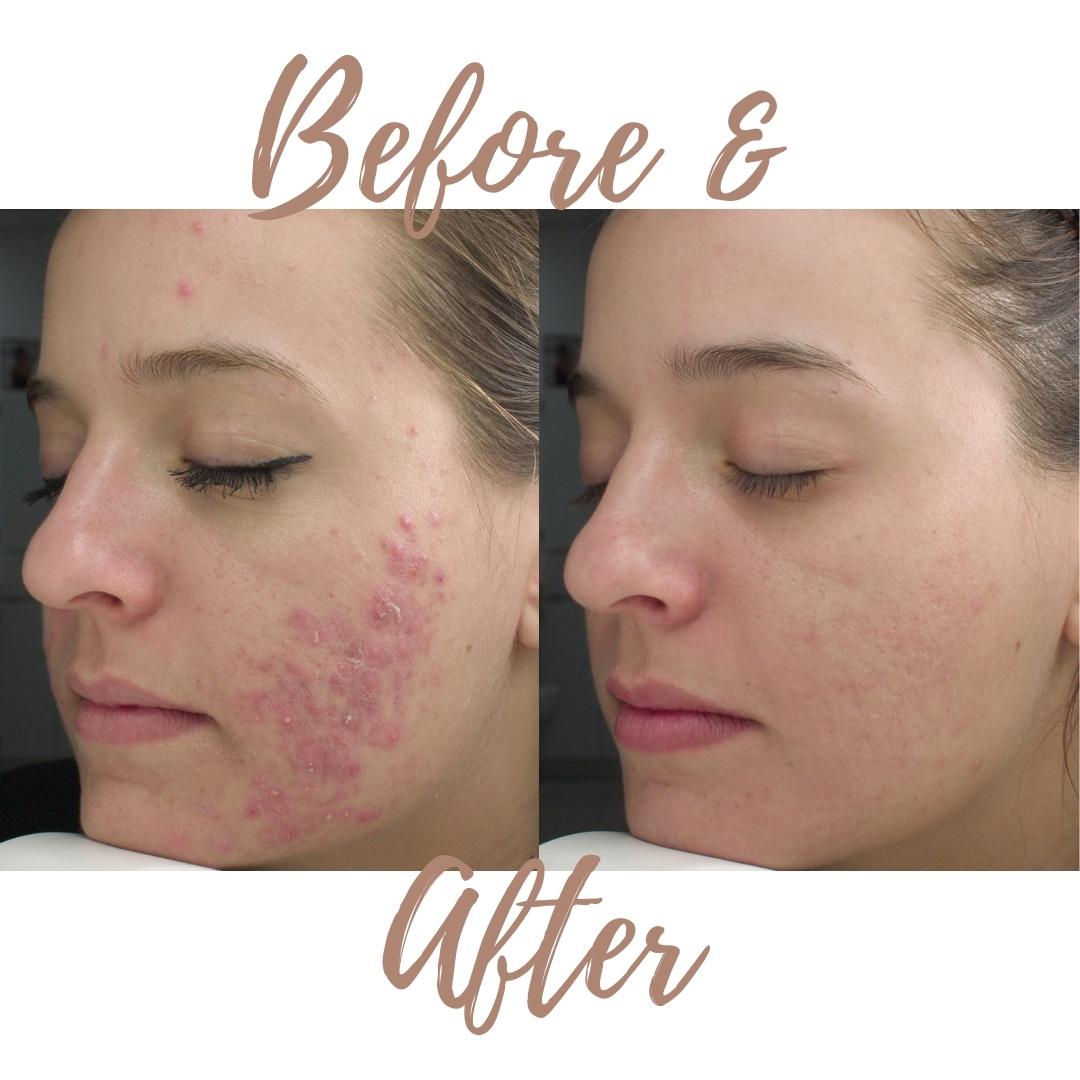 acne-verminderen-jan-marini-voor-en-na-heike-salon